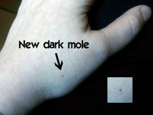 New dark mole