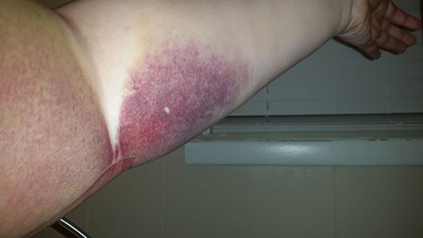 Bruised arm